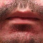 酒さ様皮膚炎 画像写真 発症10日目